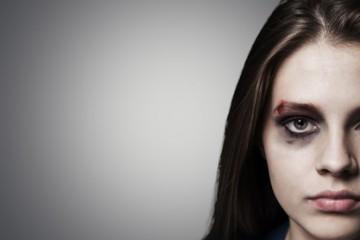 Trauma, disturbo da stress post traumatico, violenza fisica, sessuale, psicologica, stalking, ansia, panico, depressione, senso di colpa, vergogna