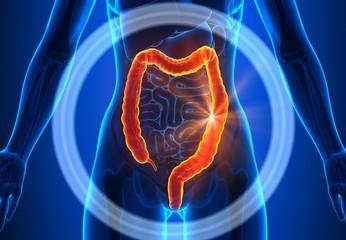 colon, colite ulcerosa, intestino crasso